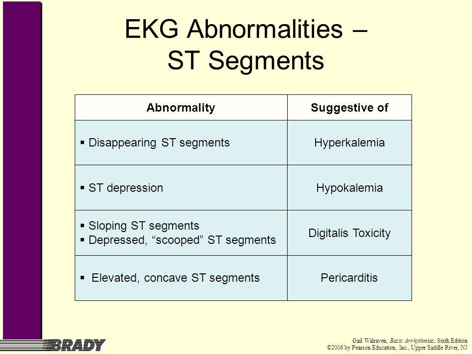 EKG Abnormalities – ST Segments