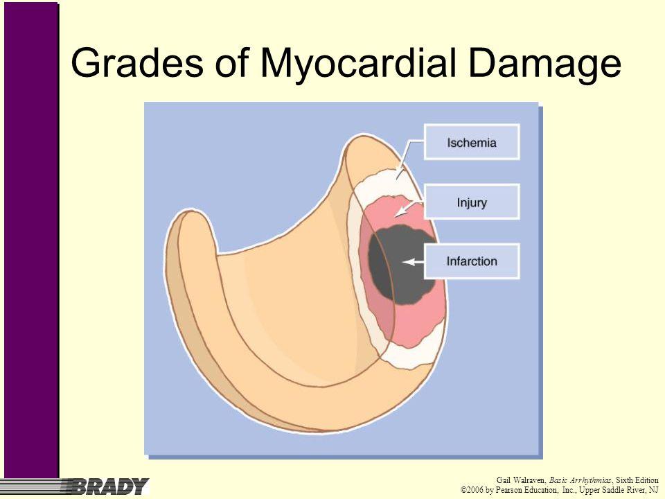Grades of Myocardial Damage