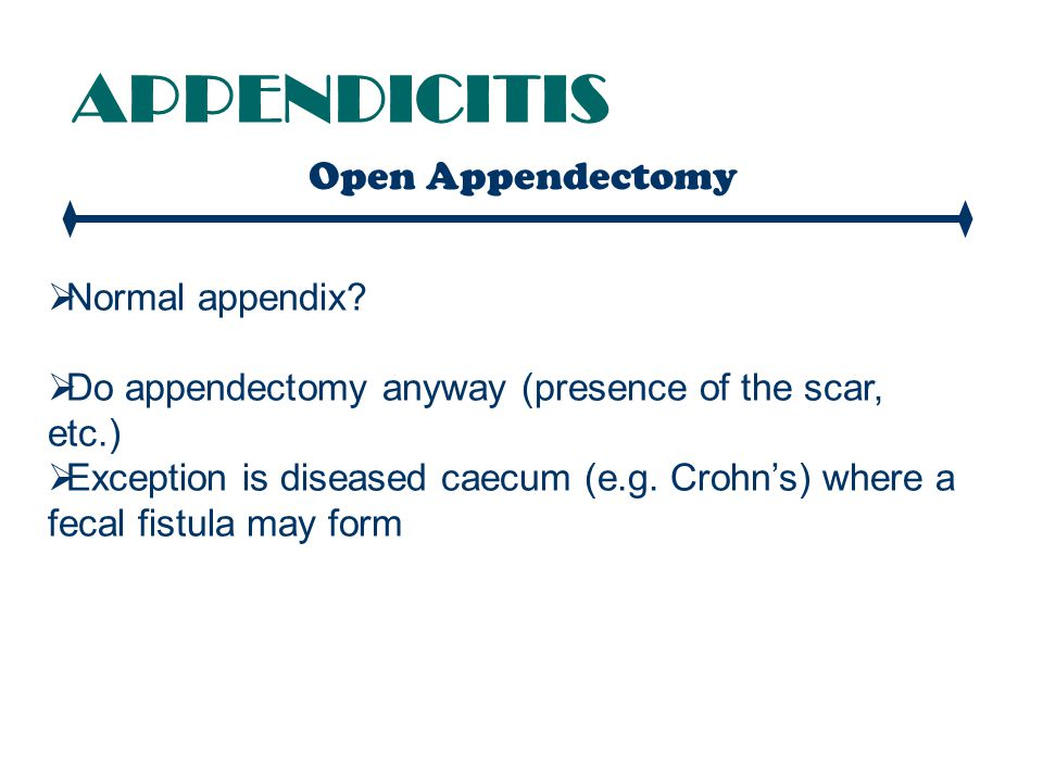 APPENDICITIS Open Appendectomy Normal appendix