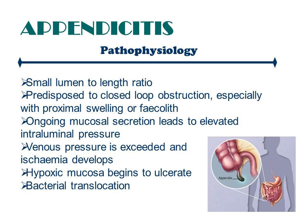 APPENDICITIS Pathophysiology Small lumen to length ratio