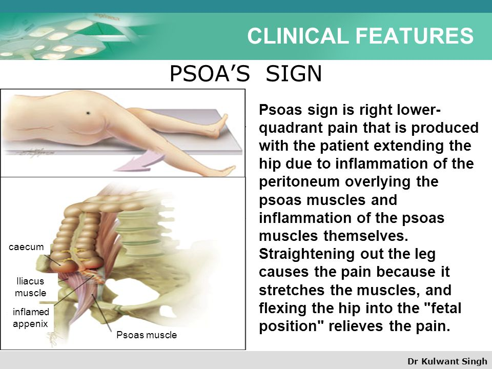 CLINICAL FEATURES PSOA'S SIGN