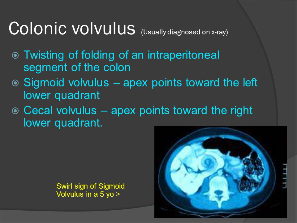 Colonic volvulus (Usually diagnosed on x-ray)