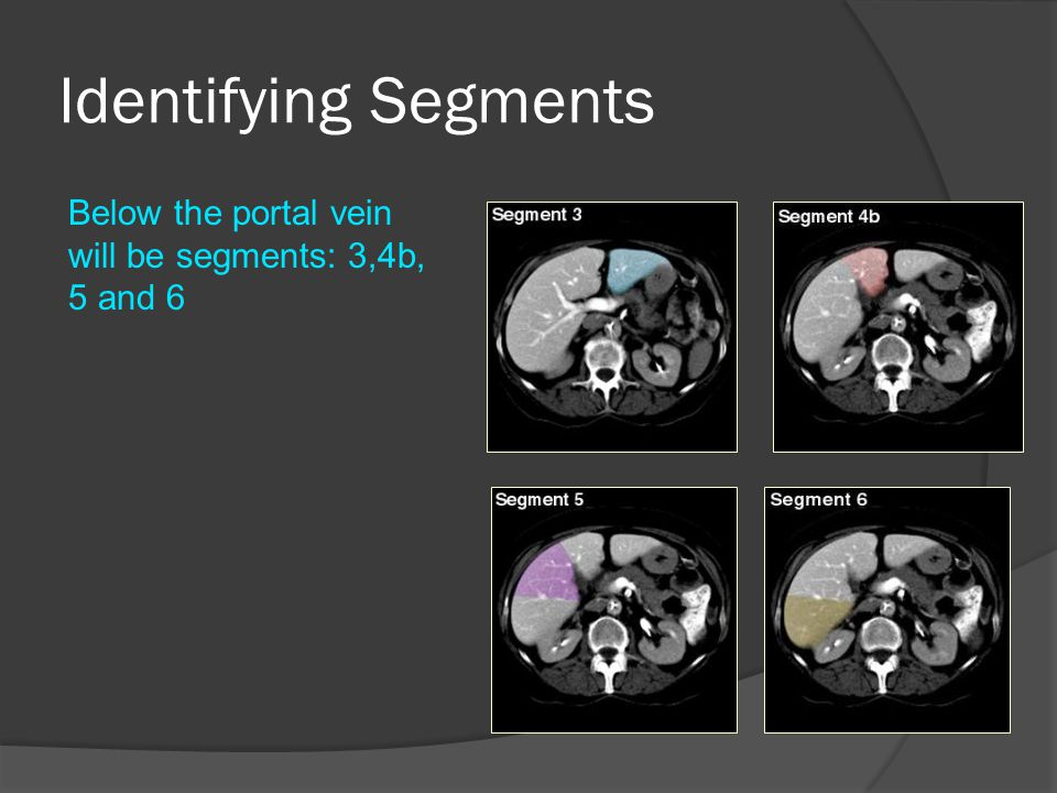 Identifying Segments Below the portal vein will be segments: 3,4b, 5 and 6