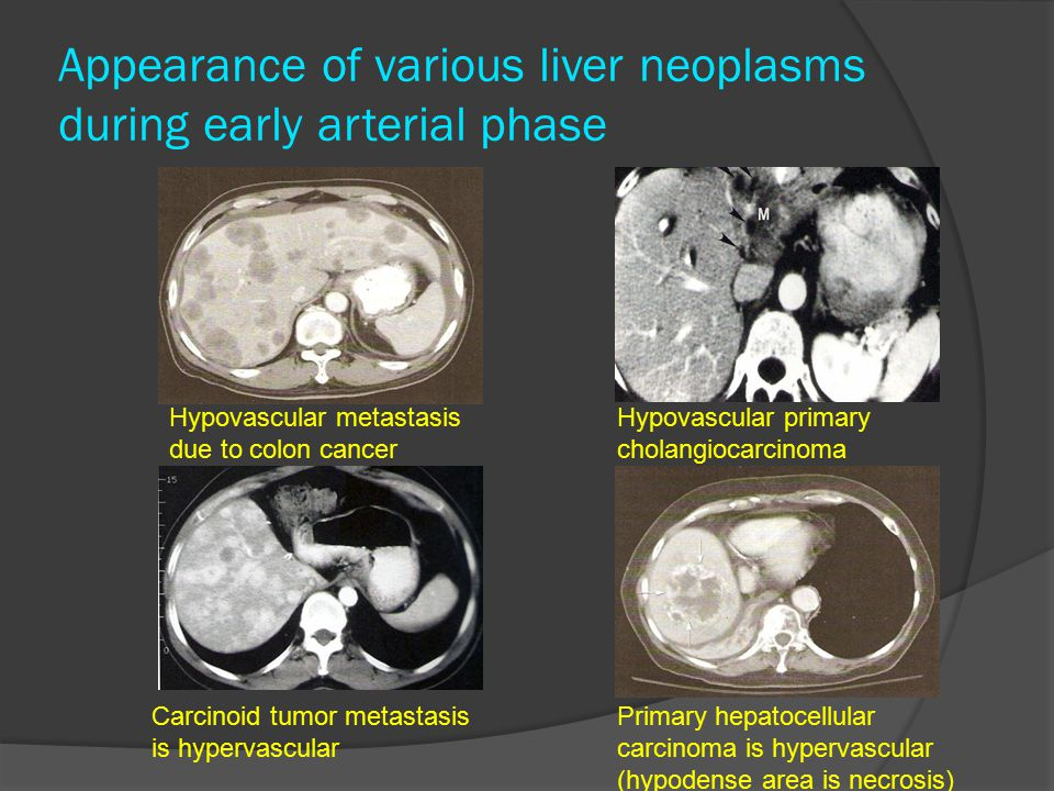 Appearance of various liver neoplasms during early arterial phase