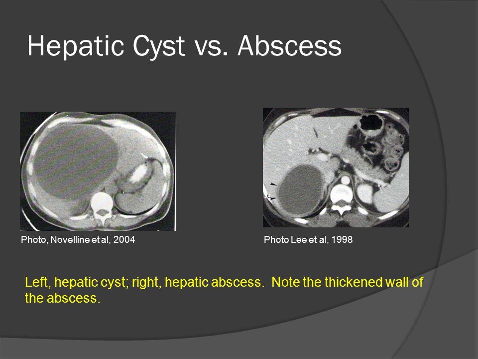 Hepatic Cyst vs. Abscess