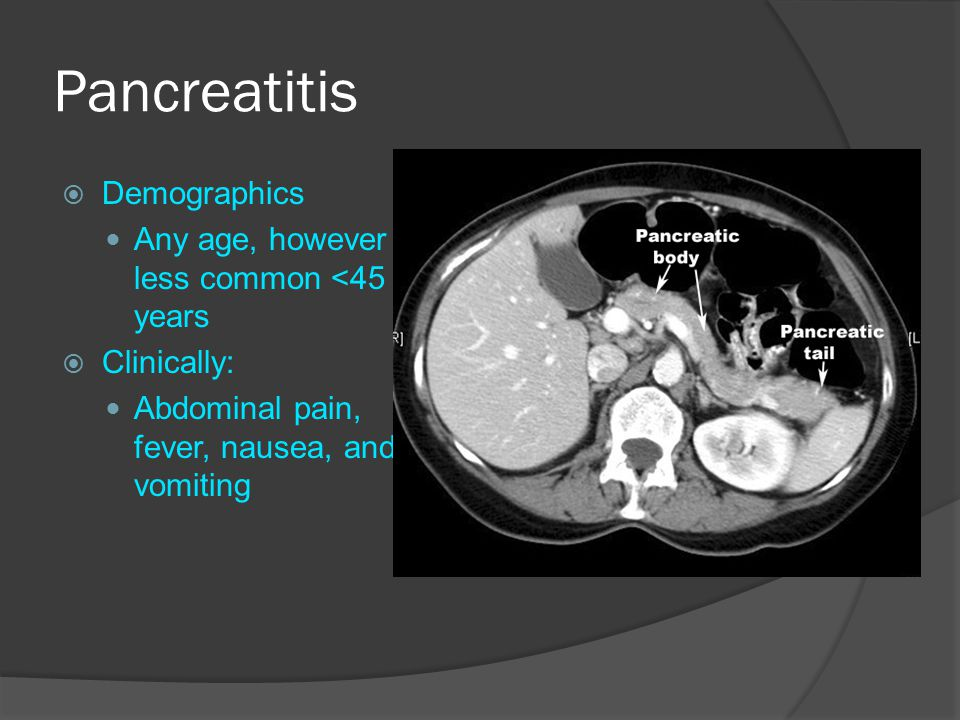 Pancreatitis Demographics Any age, however less common <45 years