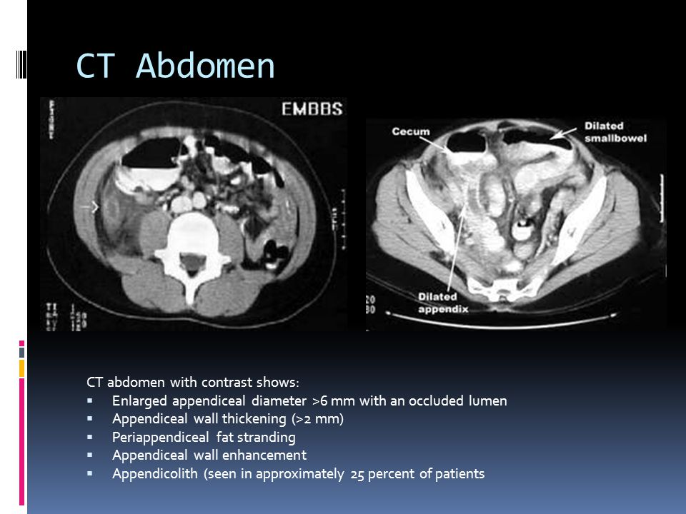 CT Abdomen CT abdomen with contrast shows: