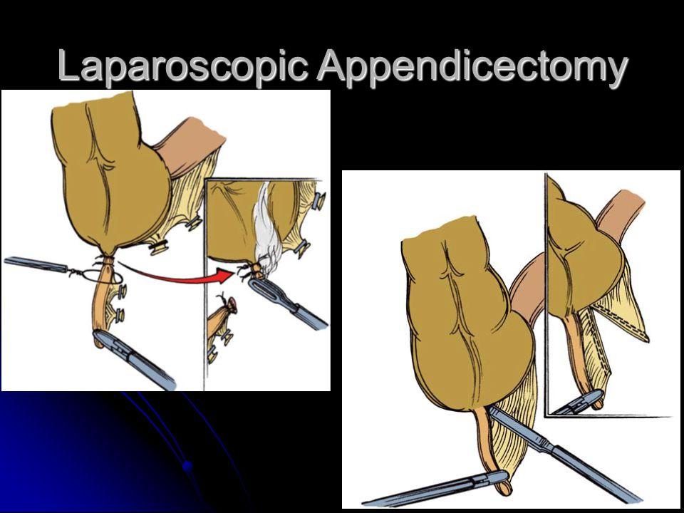 Laparoscopic Appendicectomy