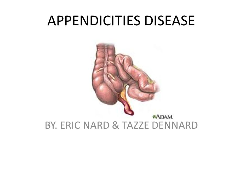 APPENDICITIES DISEASE