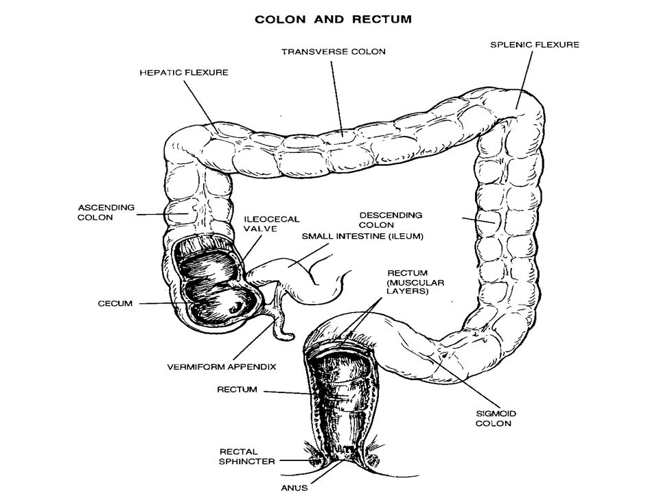 Sigmoid colon most frequent site of colon cancer