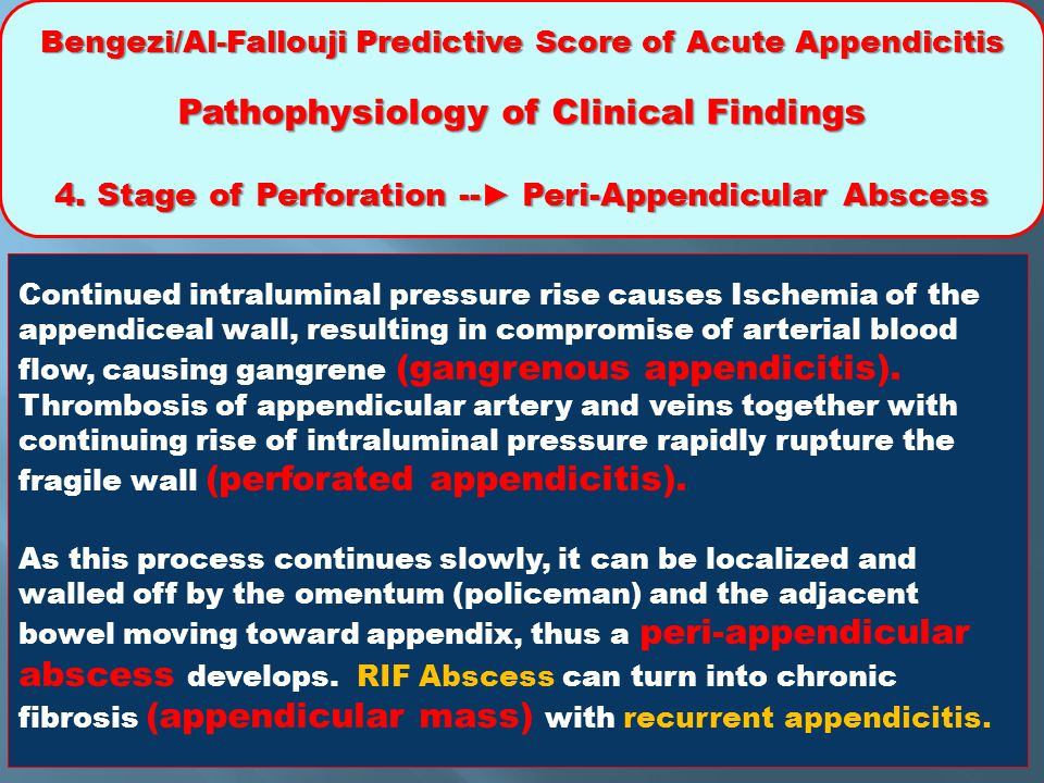 4. Stage of Perforation --► Peri-Appendicular Abscess