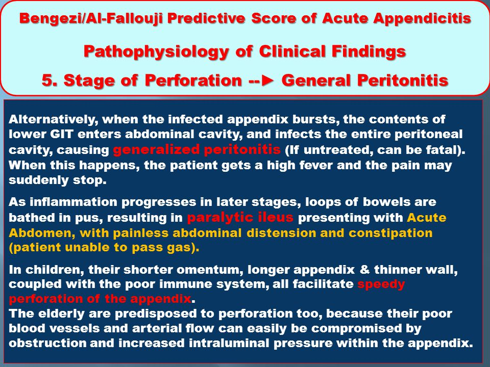 5. Stage of Perforation --► General Peritonitis