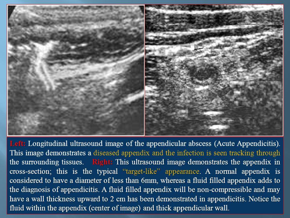 Left: Longitudinal ultrasound image of the appendicular abscess (Acute Appendicitis).