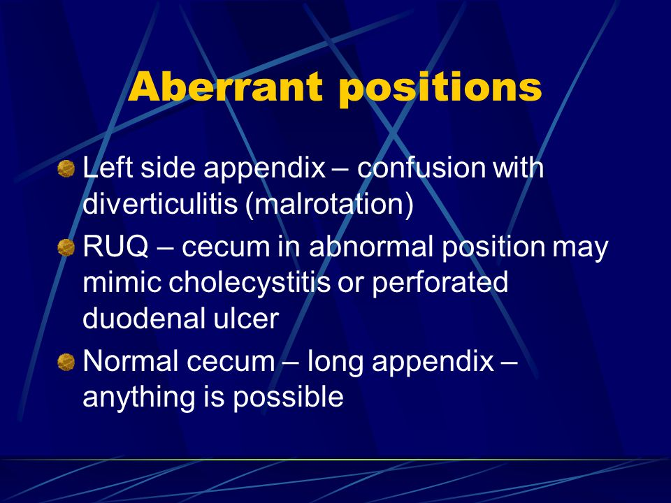 Aberrant positions Left side appendix – confusion with diverticulitis (malrotation)