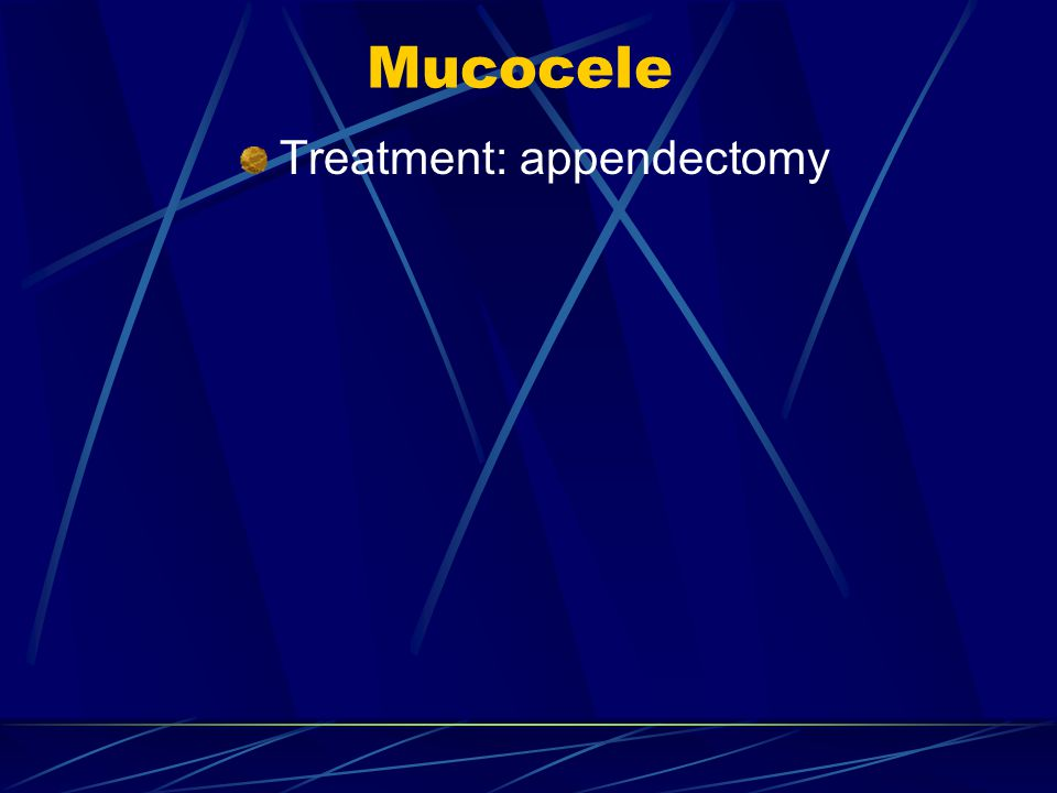 Mucocele Treatment: appendectomy