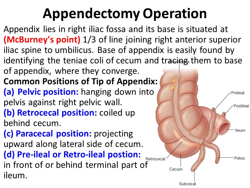 Appendectomy Operation