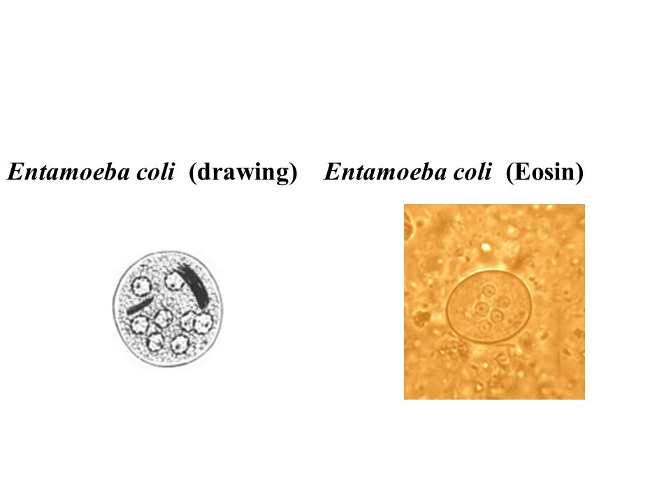 Entamoeba coli (drawing)