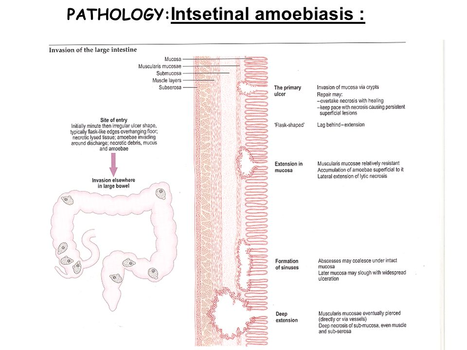 PATHOLOGY:Intsetinal amoebiasis :