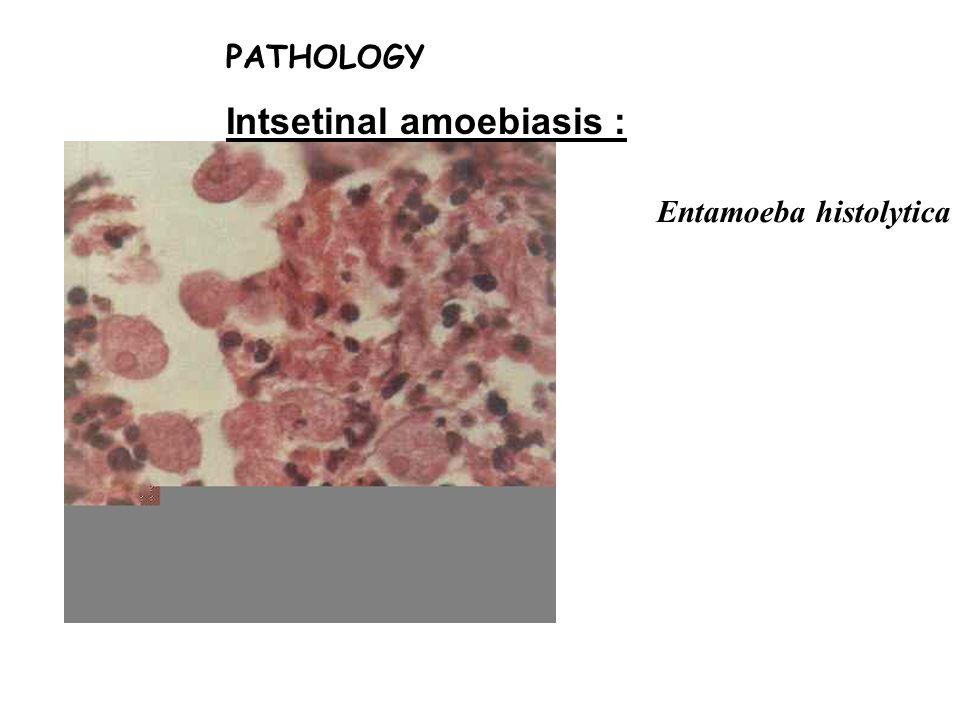 Intsetinal amoebiasis :