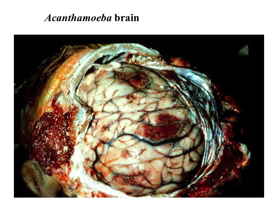 Acanthamoeba brain