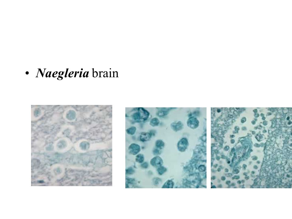 Naegleria brain
