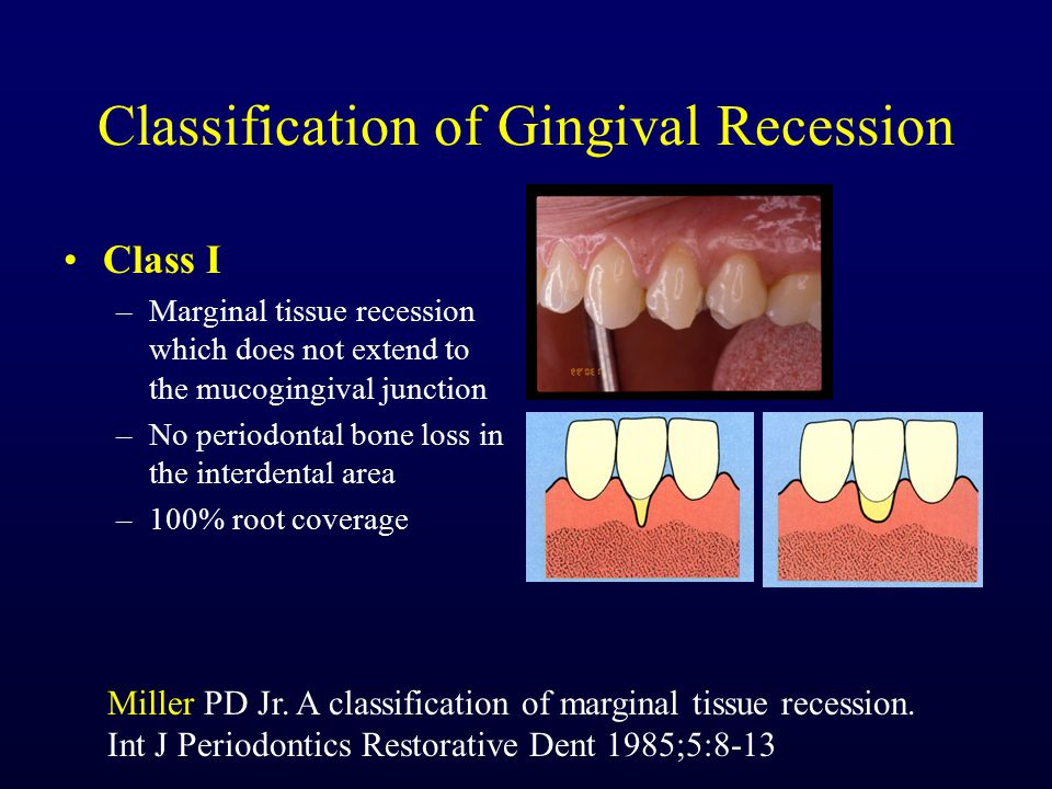 Classification of Gingival Recession