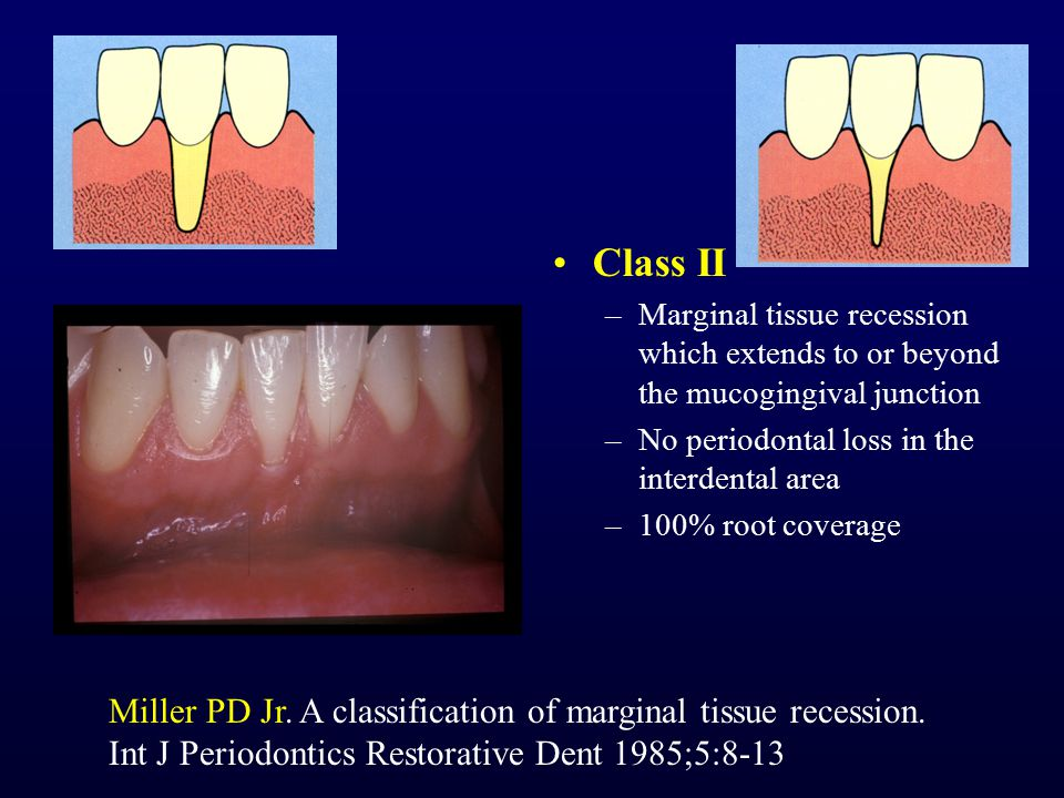 Class II Marginal tissue recession which extends to or beyond the mucogingival junction. No periodontal loss in the interdental area.
