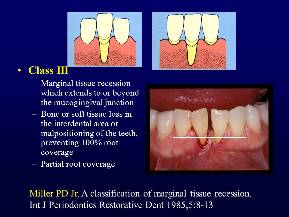 Class III Marginal tissue recession which extends to or beyond the mucogingival junction.