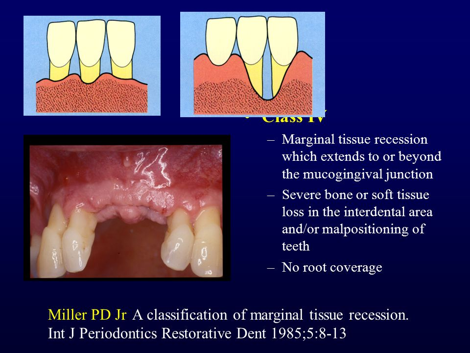 Class IV Marginal tissue recession which extends to or beyond the mucogingival junction.
