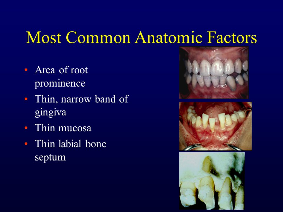 Most Common Anatomic Factors