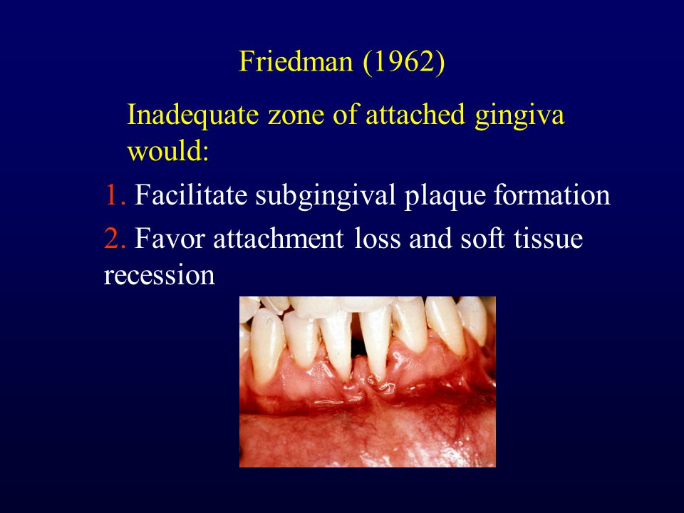 Friedman (1962) Inadequate zone of attached gingiva would: 1. Facilitate subgingival plaque formation.
