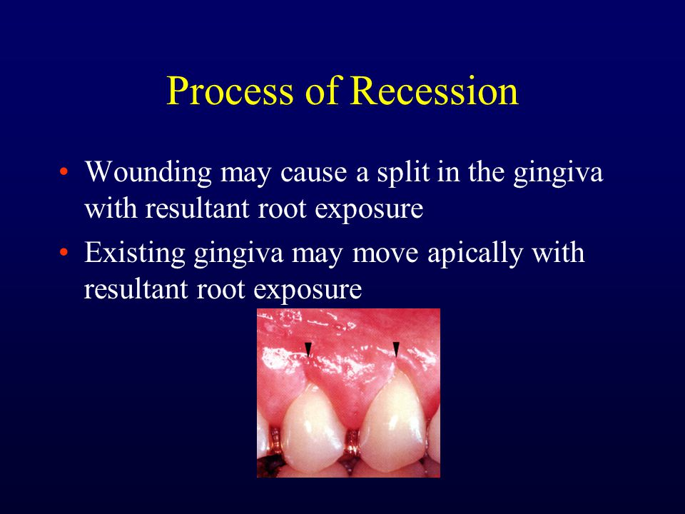 Process of Recession Wounding may cause a split in the gingiva with resultant root exposure.