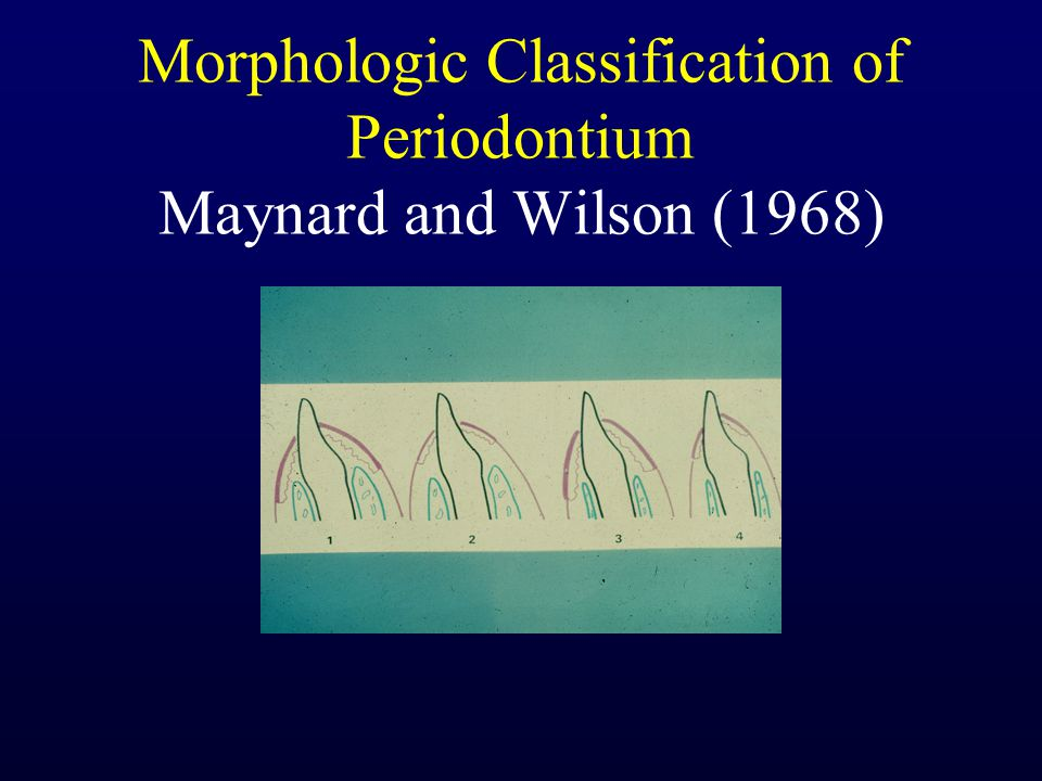 Morphologic Classification of Periodontium Maynard and Wilson (1968)