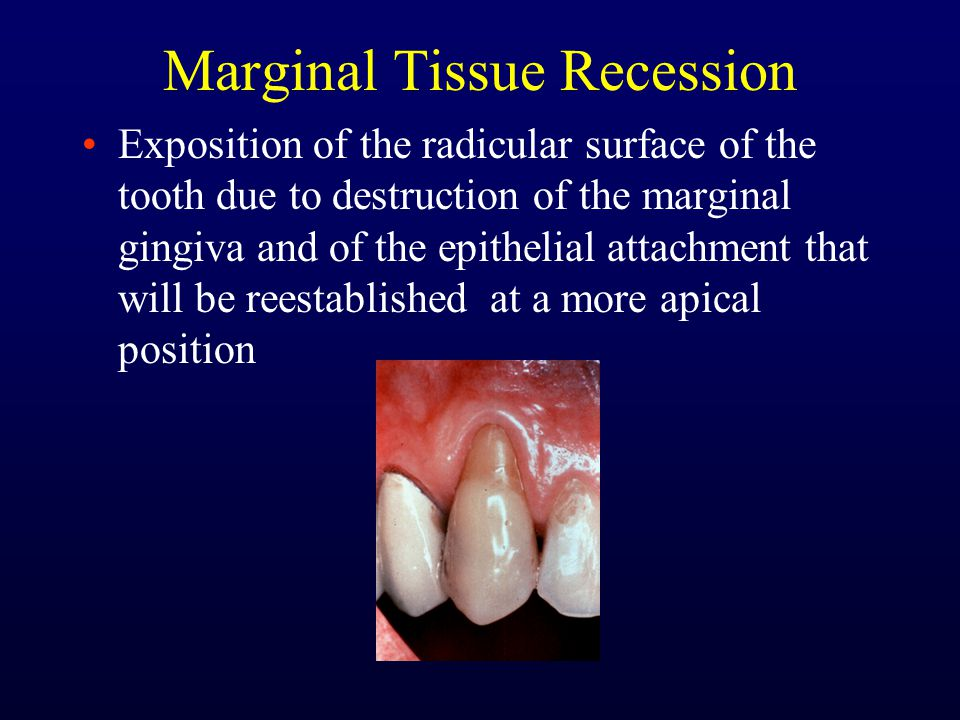 Marginal Tissue Recession