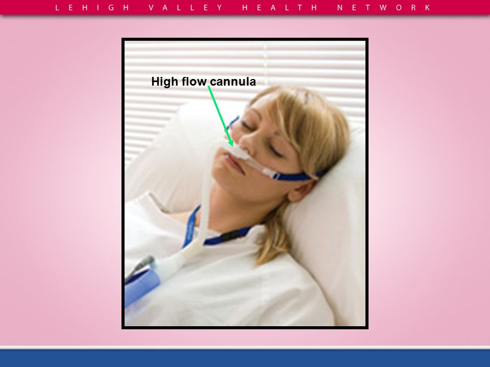 High flow cannula