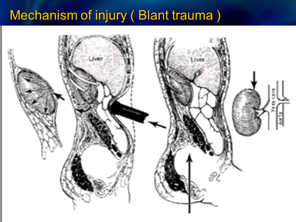 Mechanism of injury ( Blant trauma )