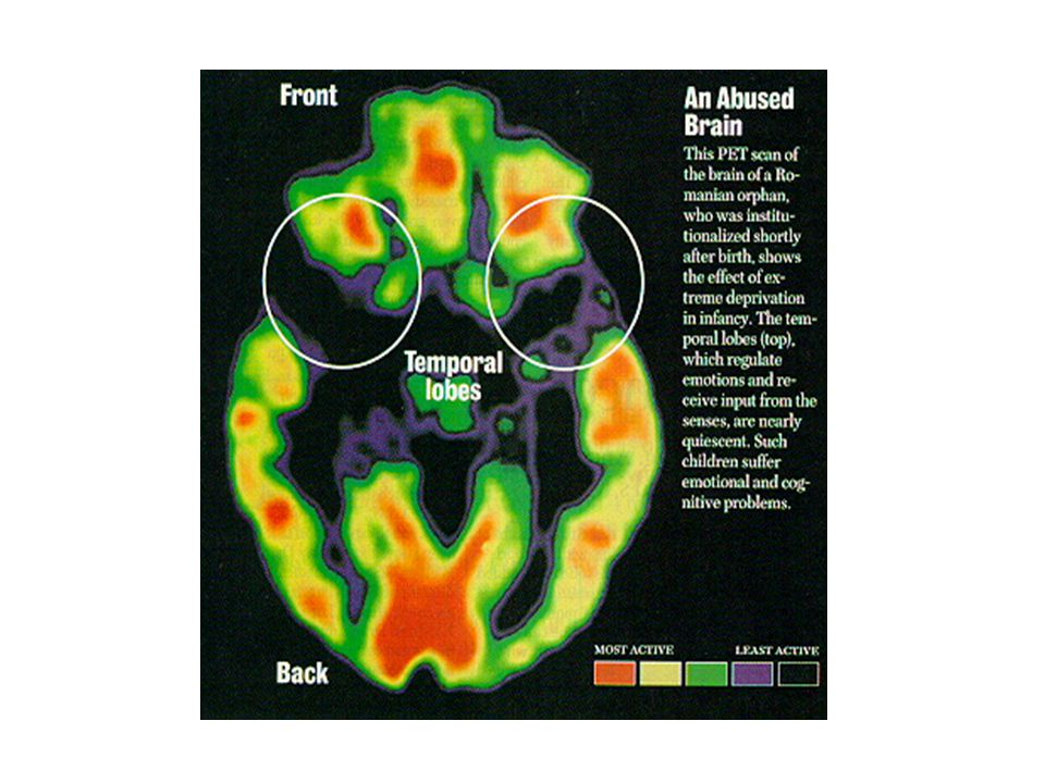PET scan of an abused brain shows severe deprivation in early infancy Black areas are predominant.