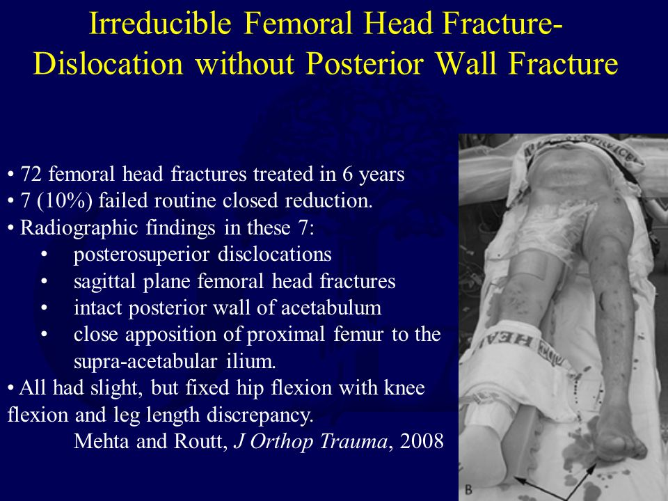 Irreducible Femoral Head Fracture-Dislocation without Posterior Wall Fracture