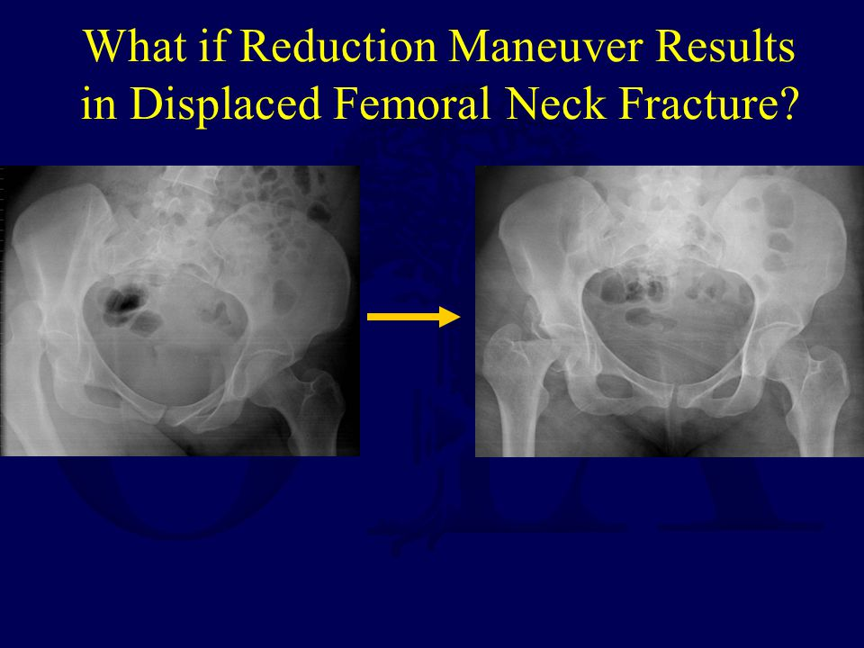 What if Reduction Maneuver Results in Displaced Femoral Neck Fracture