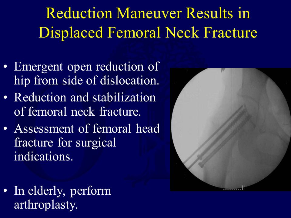 Reduction Maneuver Results in Displaced Femoral Neck Fracture