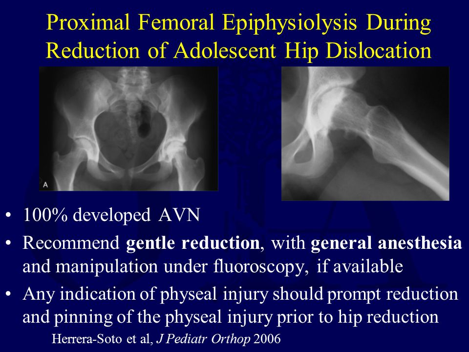 Proximal Femoral Epiphysiolysis During Reduction of Adolescent Hip Dislocation