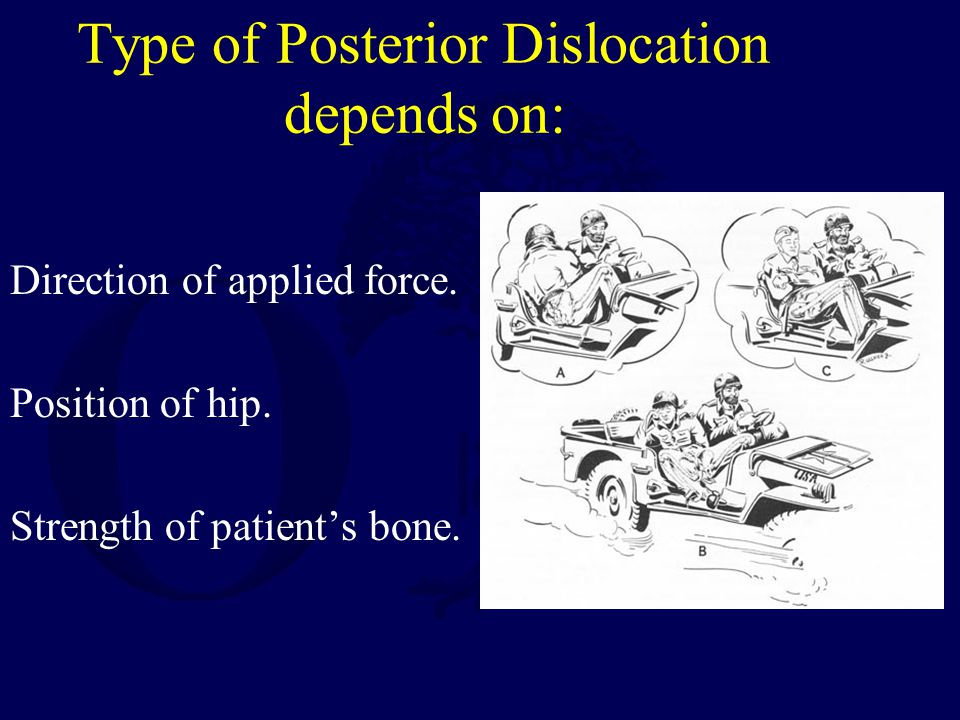 Type of Posterior Dislocation depends on: