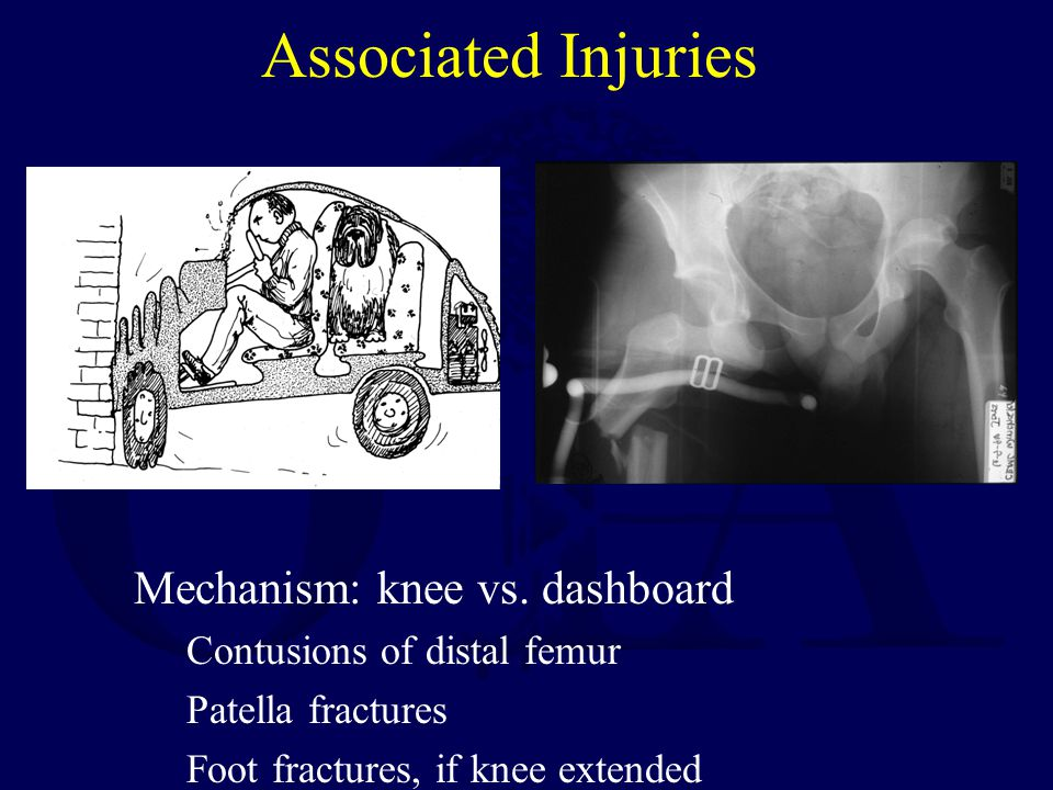 Associated Injuries Mechanism: knee vs. dashboard