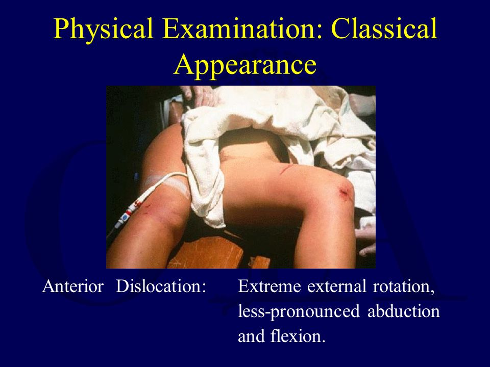 Physical Examination: Classical Appearance