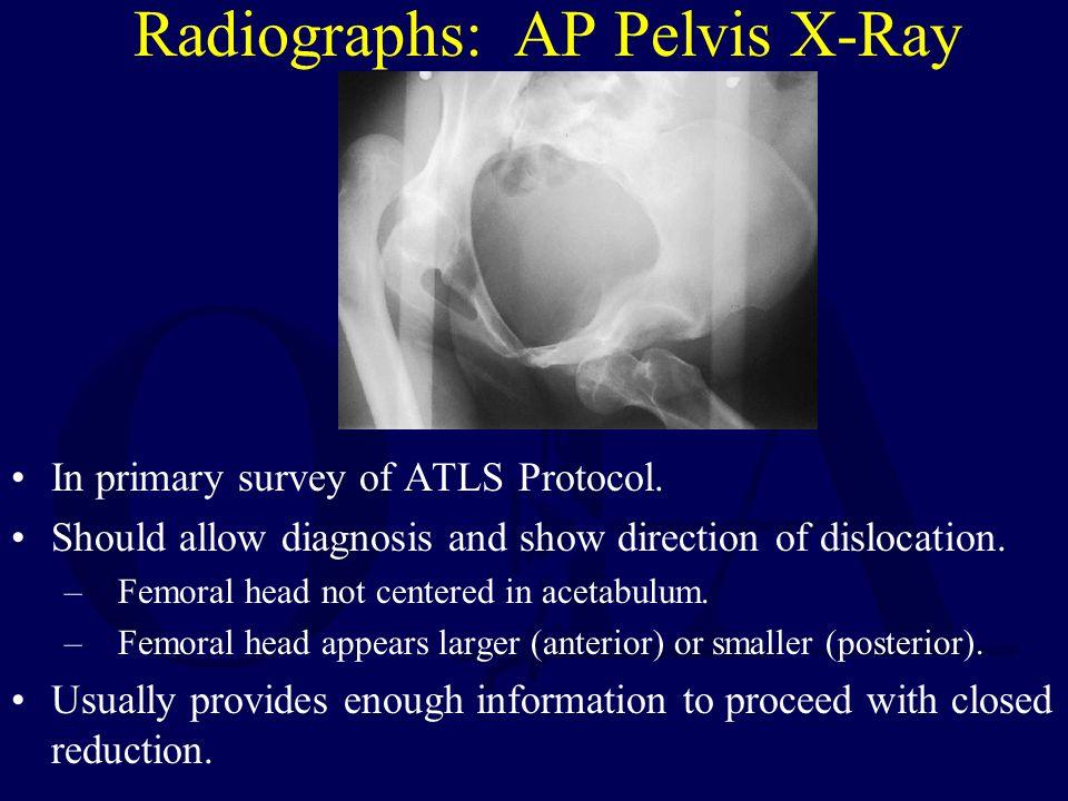 Radiographs: AP Pelvis X-Ray