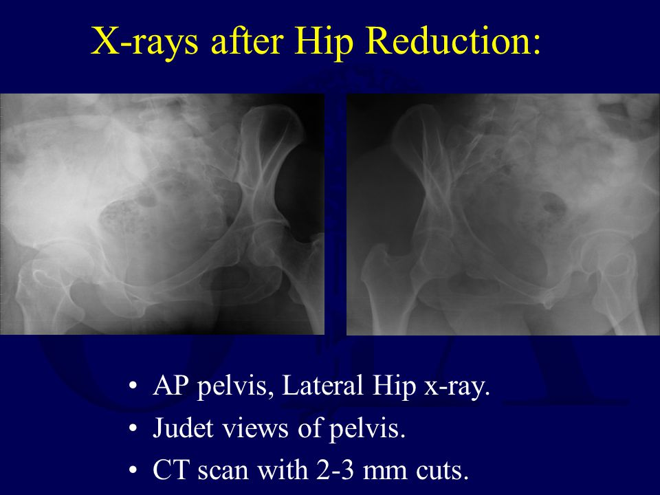 X-rays after Hip Reduction: