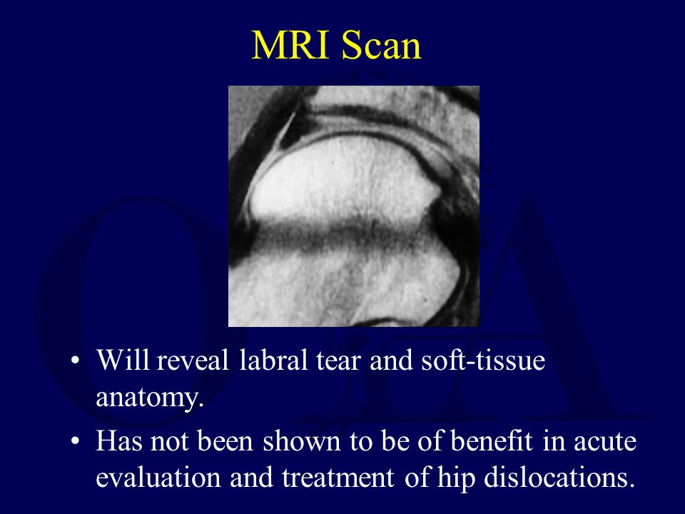 MRI Scan Will reveal labral tear and soft-tissue anatomy.