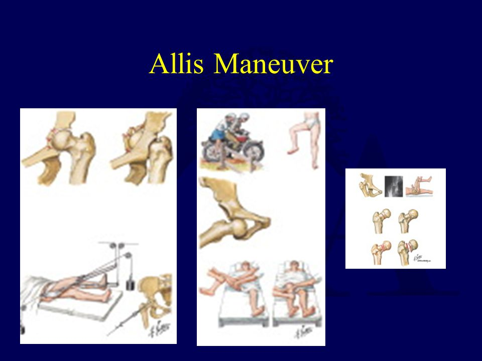 Allis Maneuver
