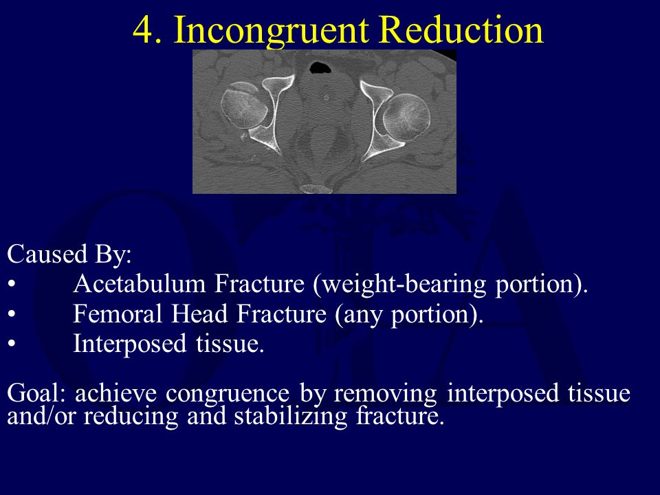 4. Incongruent Reduction