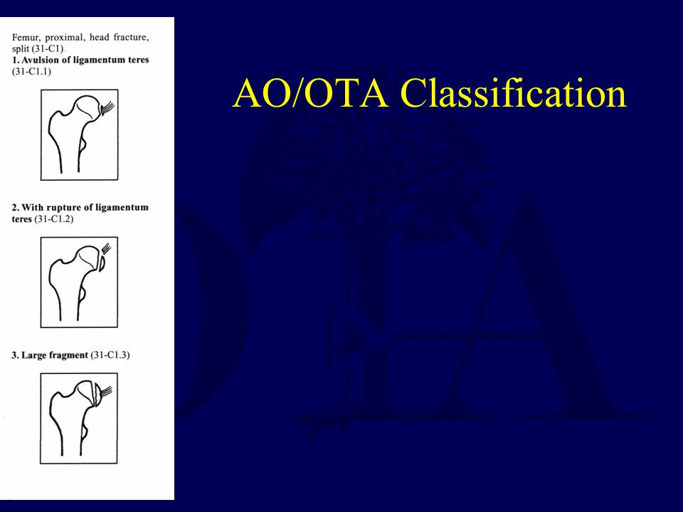AO/OTA Classification